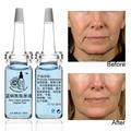 10 ml * 2 unids Azul péptidos de cobre original líquido envejecimiento antiarrugas reparación sol poros del acné eliminar el rojo la hidratación de la sangre