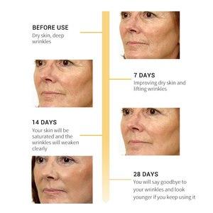 Image 4 - BREYLEE ธรรมชาติ 100% Retinol Lifting Firming เซรั่มคอลลาเจน Essence ลบริ้วรอย Anti Aging Face Skin Care Fade Fine เส้นที่ดีที่สุด