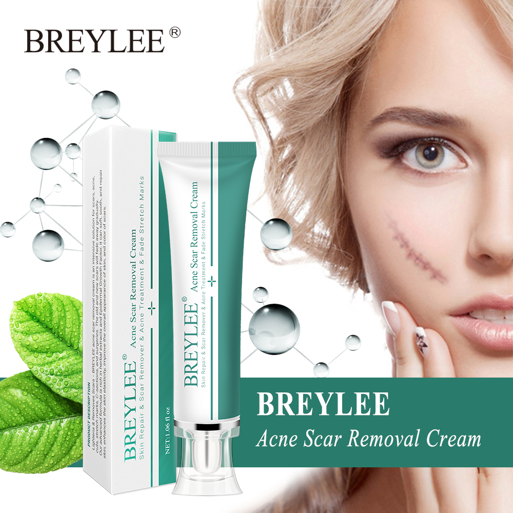 BREYLEE Acne Scar Removal Cream 30g Face Cream Skin Repair Skin Care Scar Acne Treatment Remove Stretch Marks Whitening Cream