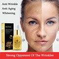 Anti Rugas Creme para o Rosto 24 k Ouro Essência Anti Envelhecimento Cremes de Clareamento Da Pele Cuidados Rosto Hidratante Ácido Hialurônico Anti-rugas