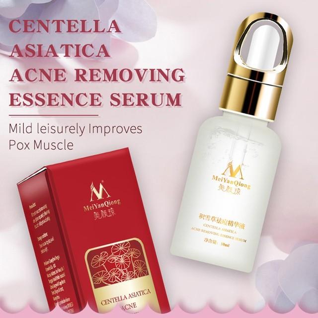 Centella Asiatica, SÉRUM facial para eliminar el acné, líquido hidratante, antiarrugas, reductor de poros, aceite para blanquear la piel, cuidado facial