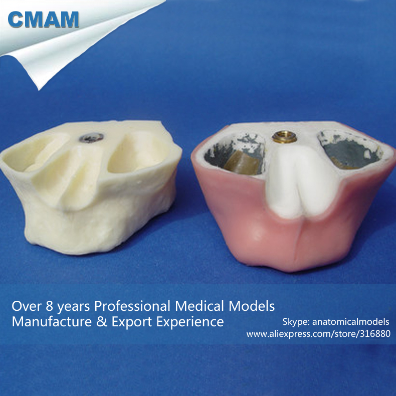 CMAM-IMPLANT02 Sinus Lift Practice Model Dental Tooth Model for Teathing and Practicing cmam dh316 enlarge 2 5 times pathology dental anatomy model with implant tooth