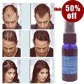 Okeny's 2016 yuda Produto Do crescimento Do cabelo pilatory Líquido Rápido crescimento spray de cabelo Tratamento da perda de cabelo 30 ml anti cinza cabelo