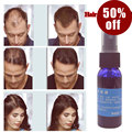 Okeny's 2016 yuda pilatory hair growth Product Liquid Fast hair growth spray hair loss Treatment  30ml anti gray hair