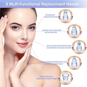 Image 2 - Extracteur de beauté sous vide, extracteur de beauté pour les pores de blanc dacille faciale, outil pour nettoyer les pores du nez