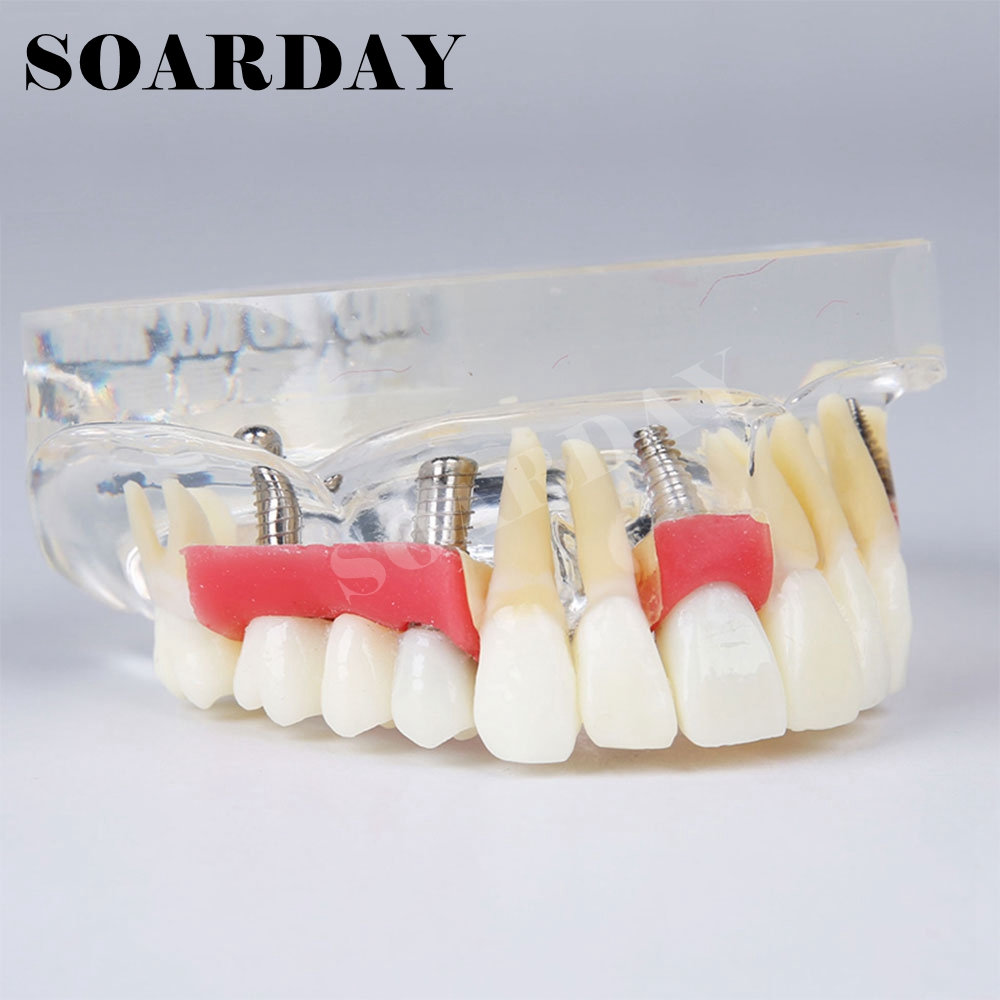Implant Dental Model Teeth Gums Removable Demonstration Model heymodel dental implant demonstration model dentist doctor patient communication model