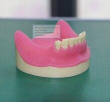 Teeth Planting Practice Model,Soft Gum Teeth Planting Practice Model,Tooth Model,Oral Skills Training Model