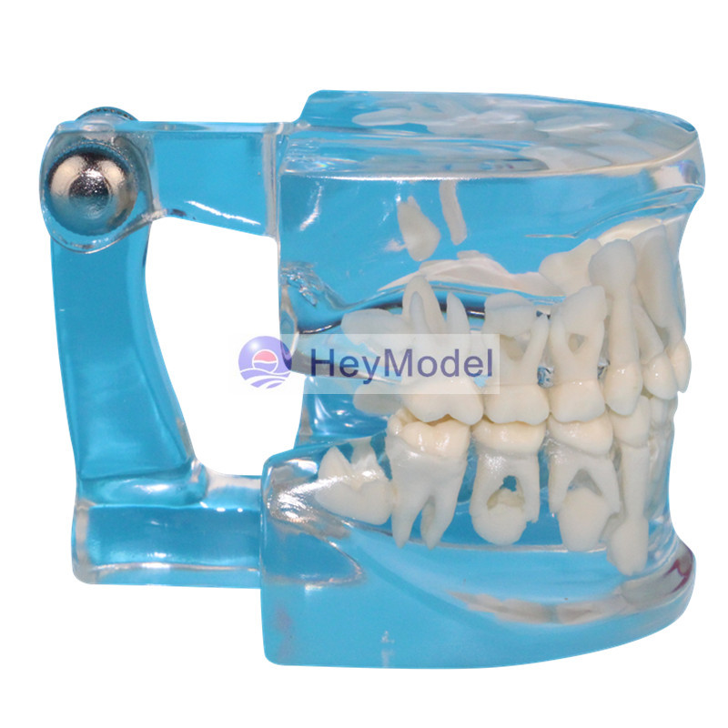 HeyModel Full transparent deciduous teeth permanent tooth alternating model soarday children primary teeth alternating transparent model dental root clearly displayed dentist patient communication
