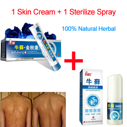 Eczema Psoriasis Treatment Beli Murah Eczema Psoriasis: 1 Sets 100% Herbs Anti Psoriasis Treatment, Eczema