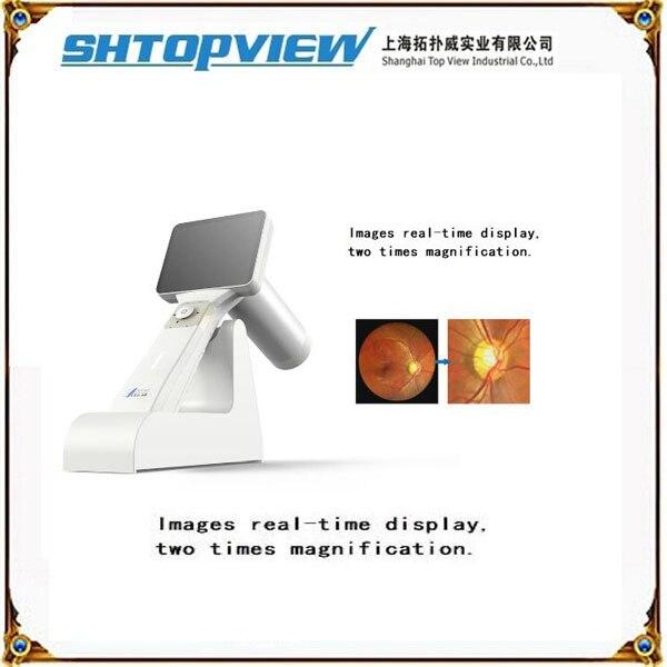 Optomap 200°Ultra-Widefield Digital Retinal Scan (Daytona ...  Digital Retinal Scan