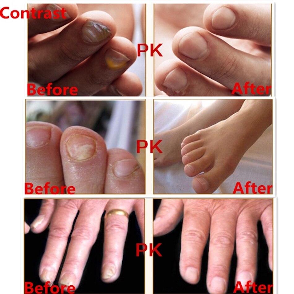 AFY Toenail Fungus Treatment Serum Foot Toe Nail Fungus Treatment ...