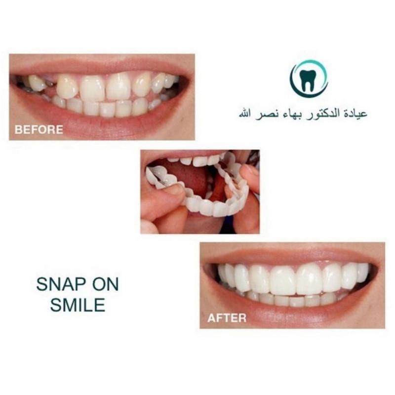 Teeth Cosmetic Instant Smile Comfort Fit Flex Cosmetic Teeth Denture Teeth Top Veneer Massage Relaxation