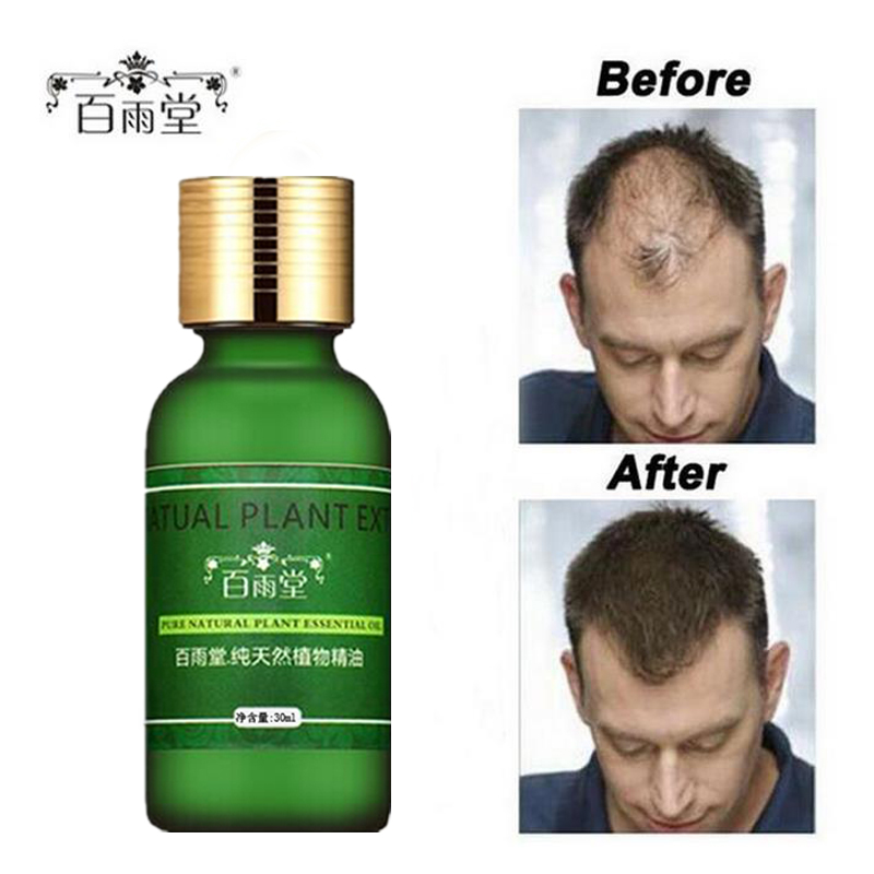 herbal oil for hair regrowth