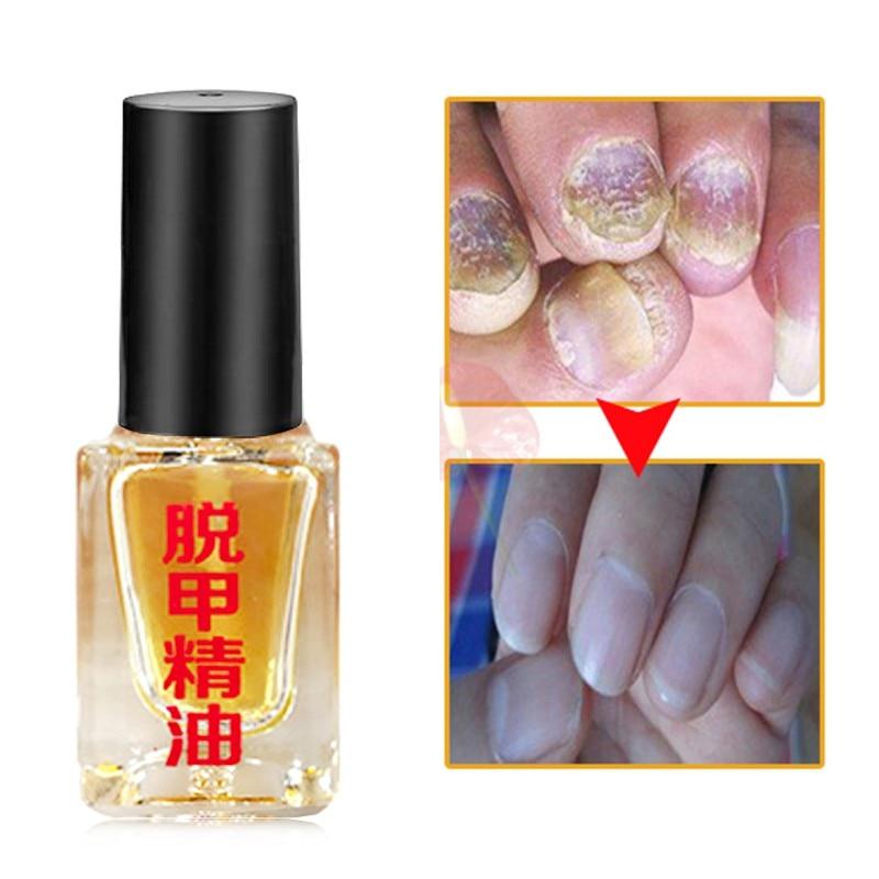 Nail Treatment Removal Onychomycosis Paronychia Anti Oil Bactericidal Nail Infection Toe Nail Fungal Nail Fungus Treatment