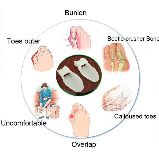 2Pcs Silicone Gel Bunion Splint Big Toe Separator