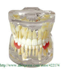 Free Shipping Typodont Orthodontic treatment model dental tooth teeth dentist dentistry anatomical anatomy odontologia model 2016 dental orthodontics typodont teeth model half metal half ceramic brace typodont with arch wire