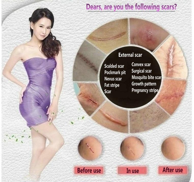 лице против грижа за лечение на акне крем премахване на белези мазна кожа Акне петна грижа за кожата отстраняване на стрии
