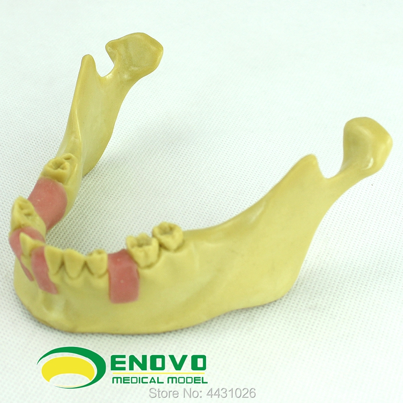 ENOVO The training model of dental implant training was used to simulate the mandibular artificial implant missing tooth