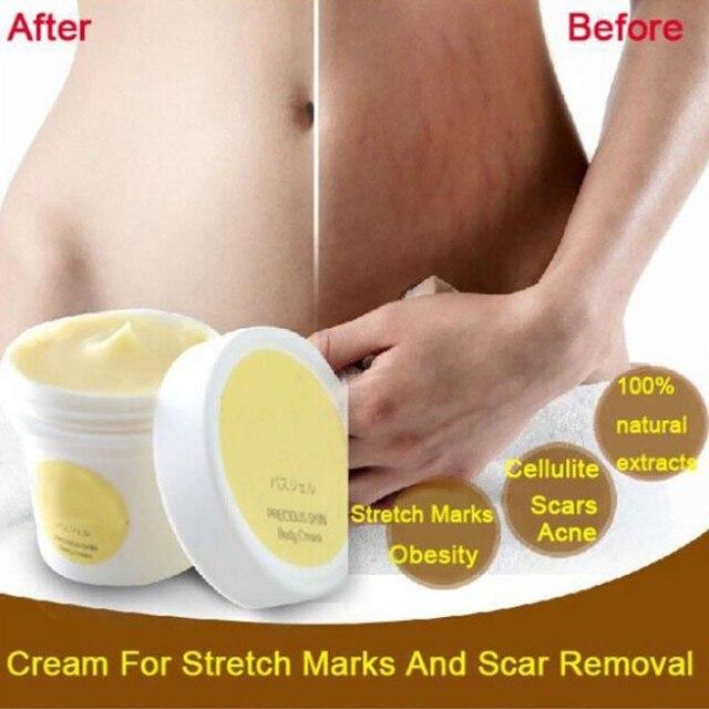 Seguridad de embarazo Reparación de marcas de estiramiento de crema cicatrices de premamá piel Reparación de Cuerpo crema 50g esencia crema