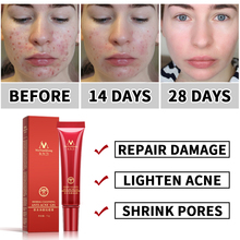Face Acne Cleaning Cream Skin Care Remove Repair Comedone Pimple Acne Quickly Face Acne Cream Remover Anti Acne Treatment omy lady one spring acne cream acne printed men