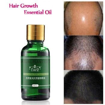 30pcs Hair Care Hair Growth Essential Oils Essence 100% Original Hair Loss Liquid Health Care Beauty Dense Hair Grow