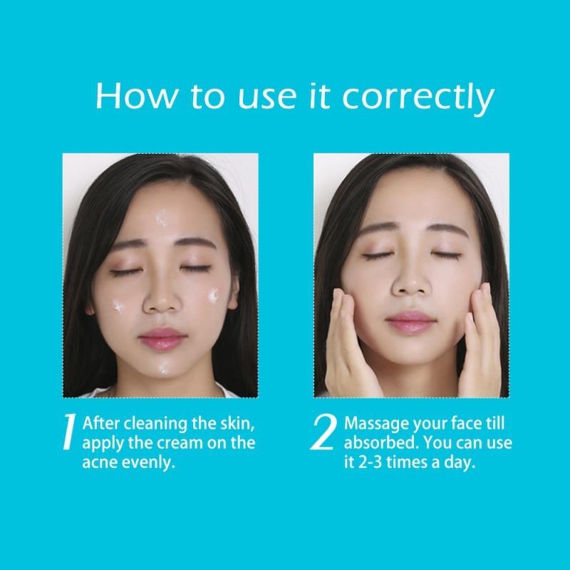 Acne čišćenje krema za njegu kože ukloniti popravak bubuljica - Briga o koži - Foto 6