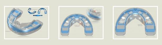 Mrc trainer t3 uso dentição permanente dentes ortodôntico trainer t1 t2 t3