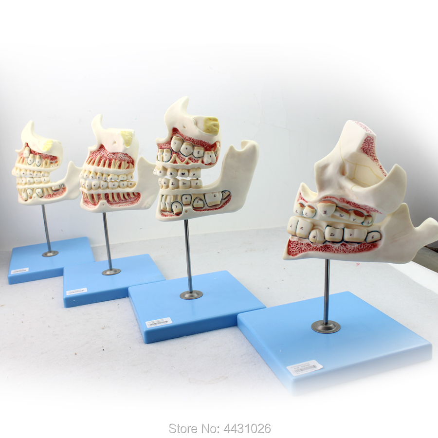 ENOVO Dental care model for children's teeth and maxillofacial development model oral and maxillofacial injuries in military recruits