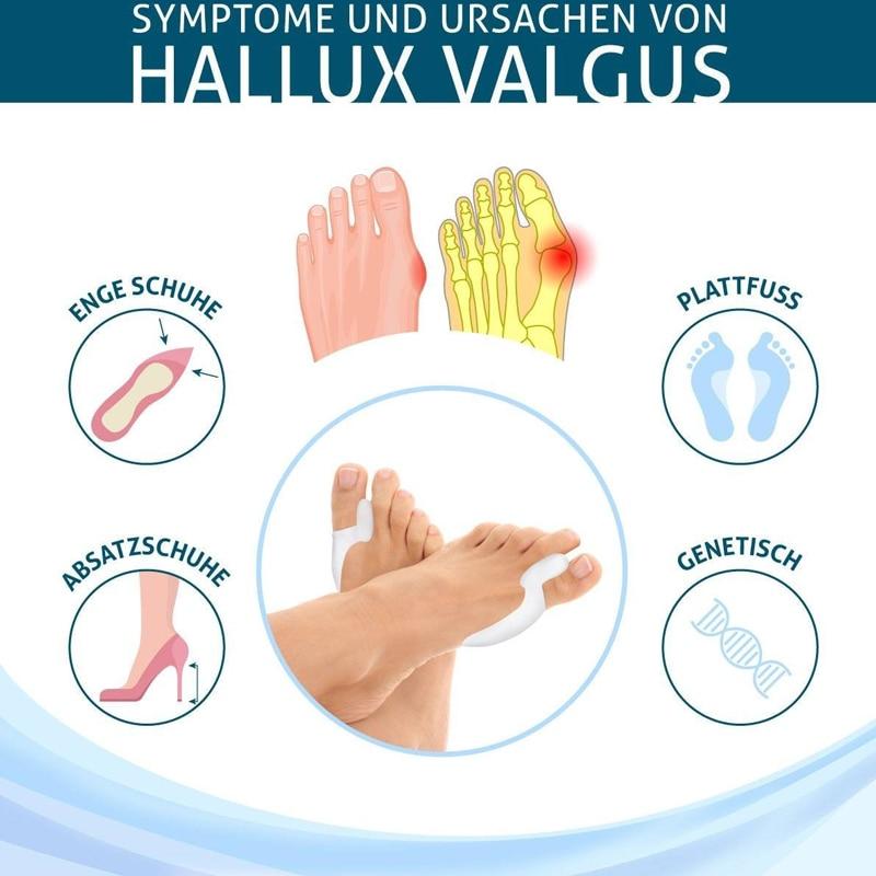 Tcare  1Pair Silicone Gel Hallux Valgus Relief Bunion Corrector and Bunion Relief Gel Toe Protectors / Toe Separators Bunion Pad 3