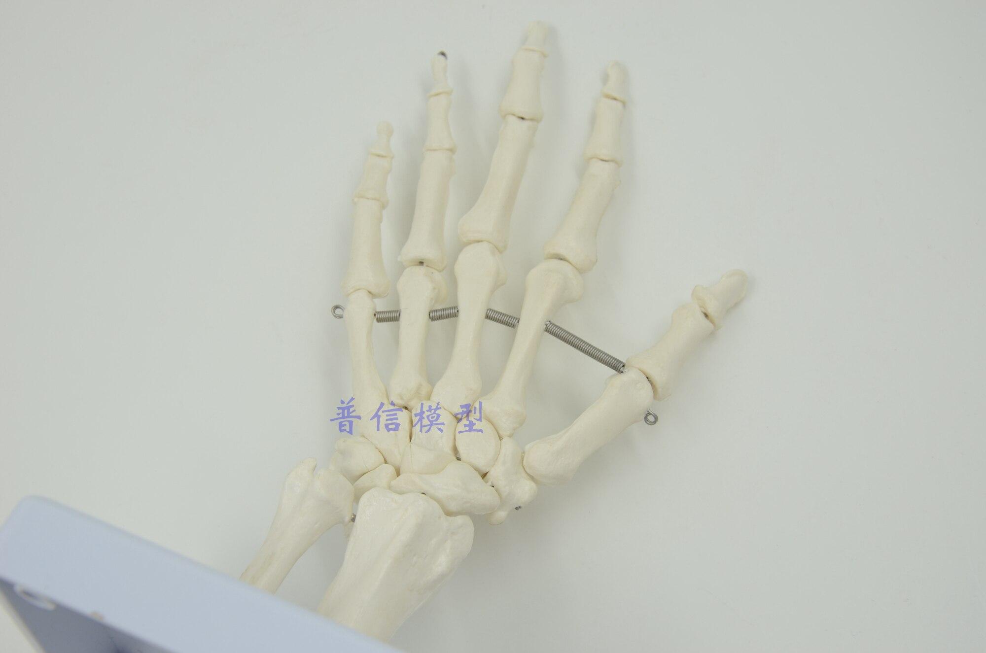 Groß Knochen Im Handgelenk Und Hand Bilder - Menschliche Anatomie ...