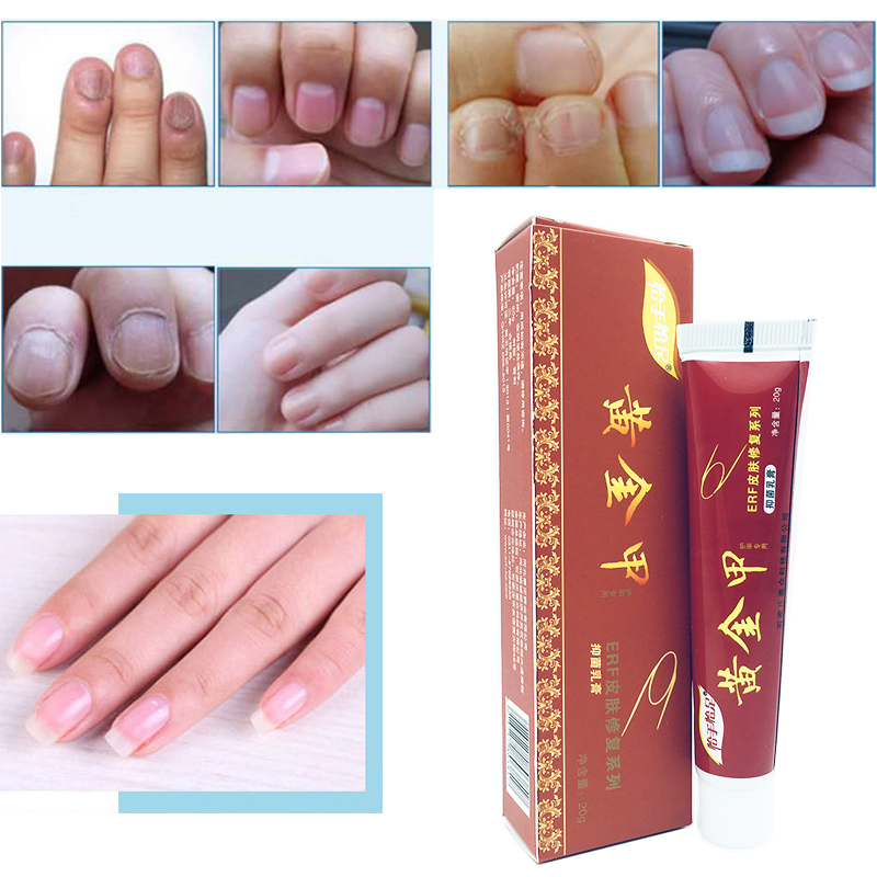 Chinese Medicine Herbs Toe Nail Fungus Treatment Anti Fungal Nail Infection Essence Nail Treatment Removal Nail Care Lotion adiors long middle parting shaggy wavy color mix synthetic party wig