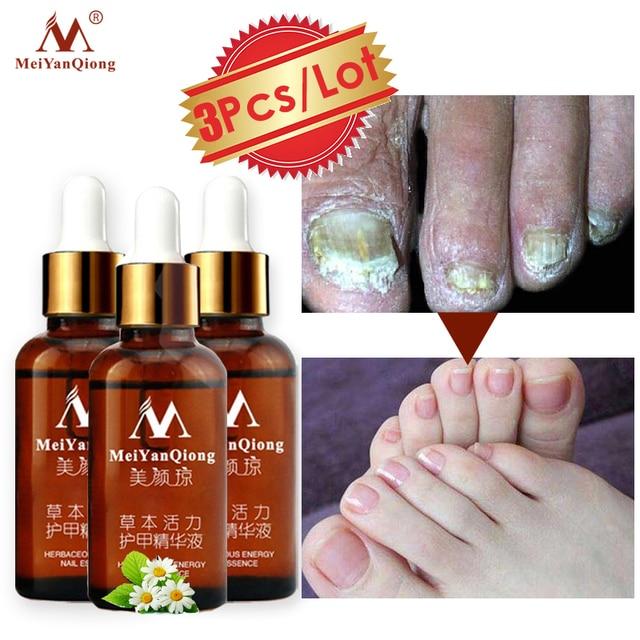 3 unids/lote tratamiento de uñas micóticas Reparación de esencia de uñas y cuidado de los pies blanqueamiento de uñas antihongos infección de uñas gel