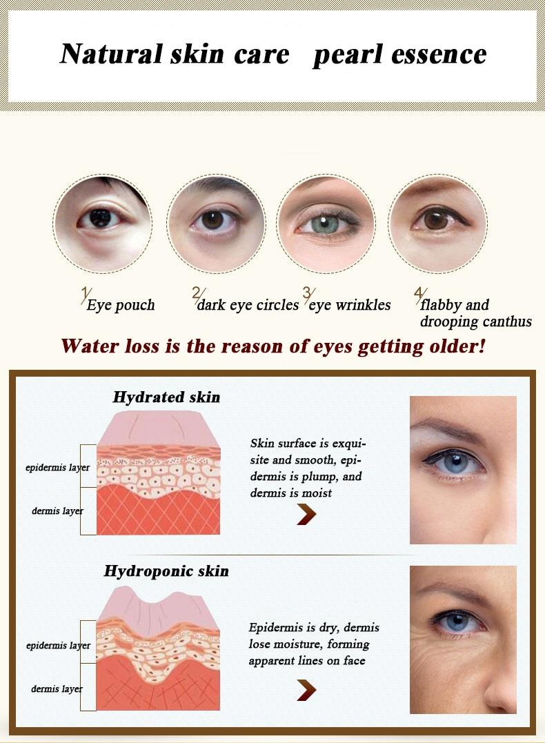Strentch-Marks-Acne-Scar-Remover-Acne-Treatment-Shrink-Pores-Gel-Bleaching-Creams-Whitening-Moisturizing-Face-Cream (1)