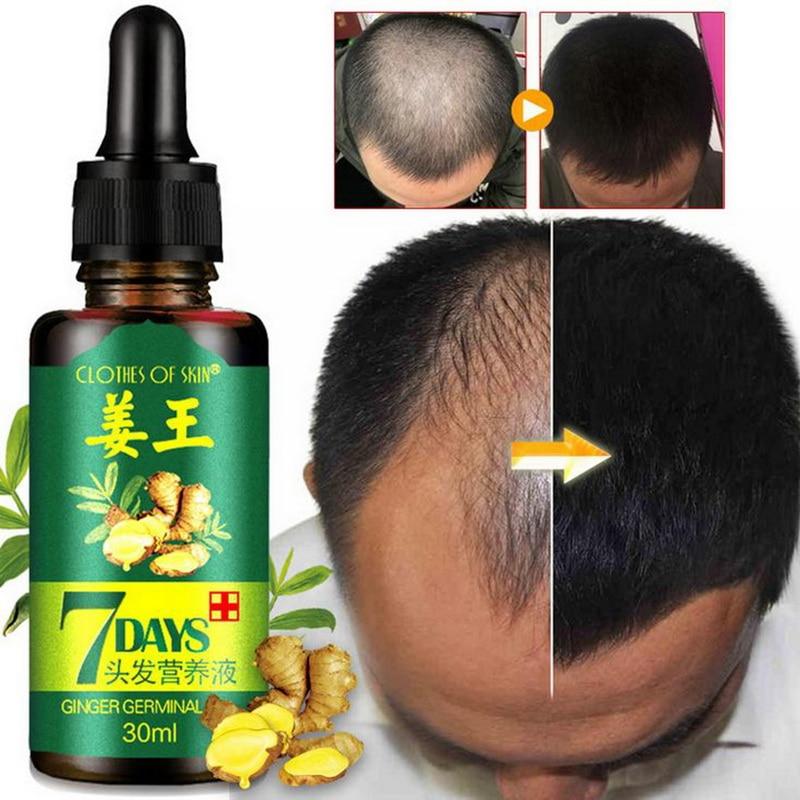 Hot 100% Ginger Plants Hair Growth Essential Oils Original Hair Care Loss Products Liquid Health Care Beauty Dense Hair Serum