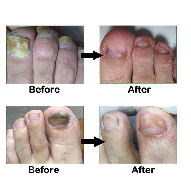 Toe Nail Fungus Removal Oil Fungal Nail Treatment Feet Care Essence Nail Foot Whitening Anti Infection Paronychia Onychomycosis