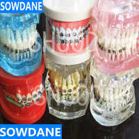 Dental Zahnpflege Zahn Zähne Modell Dental Kieferorthopädische Modell für Patienten Kommunikation Zahnarzt Studie Modell