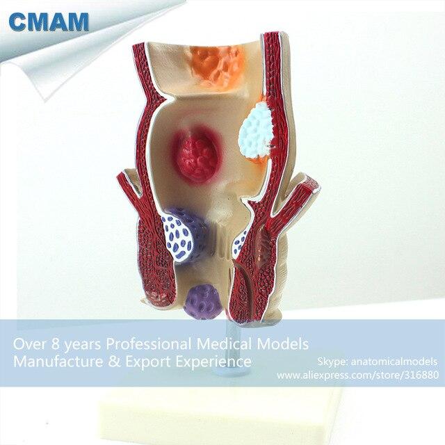 Anus medical picture