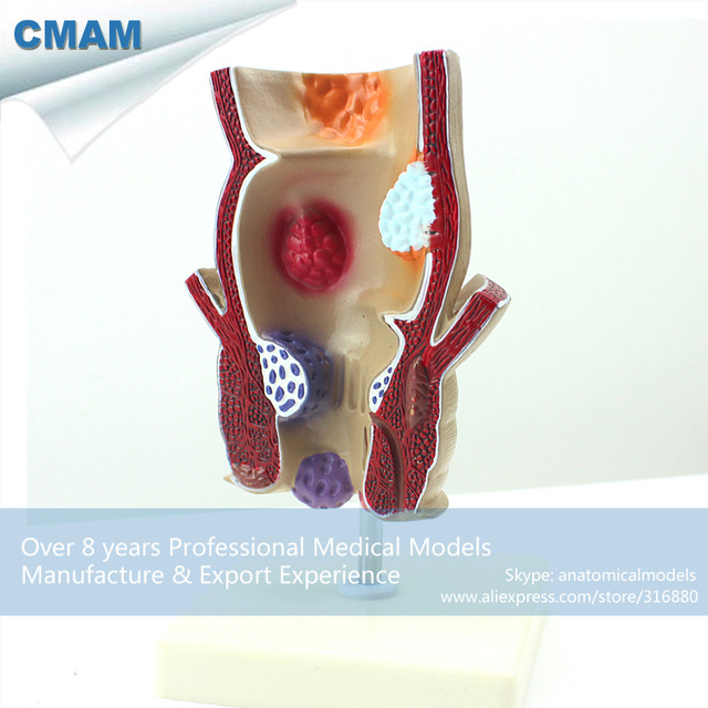 CMAM-VISCERA10 Rectum Pathology Lesion Hemorrhoids Anus Anatomy Model,  Medical Science Educational Teaching Anatomical Models cmam a29 clinical anatomy model of cat medical science educational teaching anatomical models