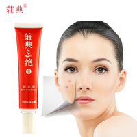 Jonde Acne Free Cream Remove Treat Acnes Pimples Repair Acne Scars Control Oil Oily Skin For