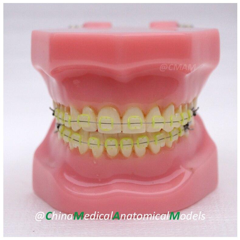 13029 DH203-3 Ortho Ceramic Bracket, Dentist Demo Oral Dental Ortho Ceramic Bracket Model, China Medical Anatomical Model 13030 dh204 orthodontic model dentist training oral dental orthodontic model china medical anatomical model