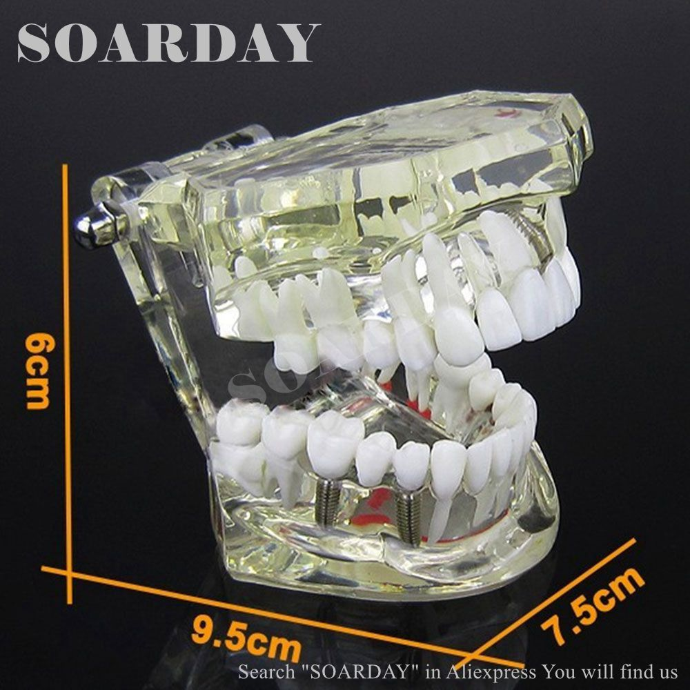 SOARDAY Implant model with restoration dental tooth teeth dentist anatomical anatomy model odontologia dh202 2 dentist education oral dental ortho metal and ceramic model china medical anatomical model