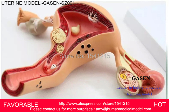 FEMALE REPRODUCTIVE SYSTEM   UTERUS OVARY VAGINA REPRODUCTIVE DIVISION DEPARTMENT OF GYNECOLOGY MEDICAL DEMO MODEL -GASEN-SZ001 effect of curcuma longa on ovary of endosulfan exposed mice