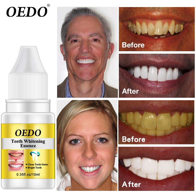 OEDO Teeth Whitening Essence Powder Oral Hygiene Cleaning Serum Removes Plaque Stains Tooth Bleaching Dental Tools Toothpaste серум за растеж на мигли