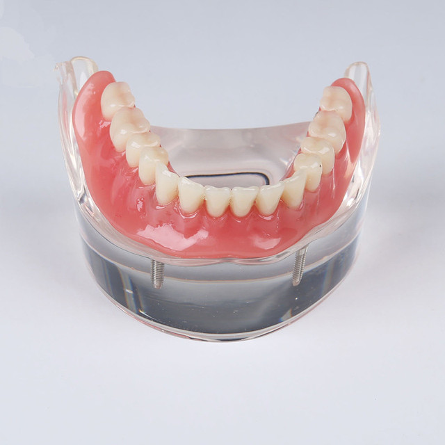 Human Dental Lab Denture Teeth Anatomy Removable Overdenture