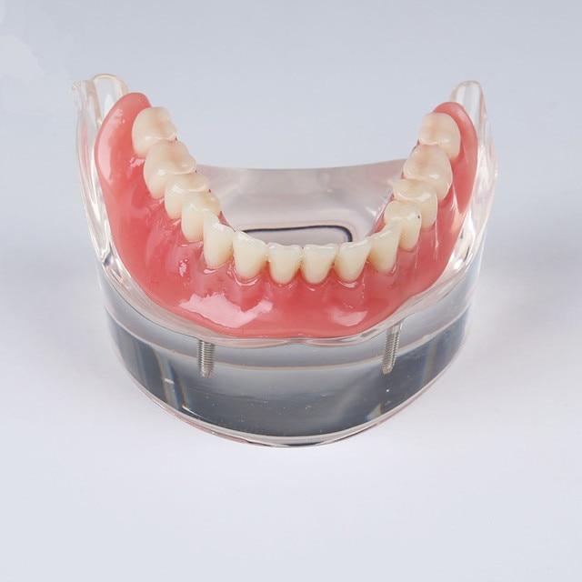 Humano laboratorio dental dentadura dientes anatomía extraíble ...