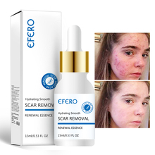 EFERO Acne Treatment Serum Face Essence Anti Removal Cream Skin Care Whitening Repair Pimple Remover for