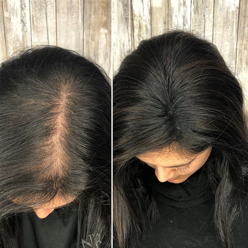 Toupee Hair For Women Brazilian Virgin 100 Human Hair Clip Ins 2 5x4 Inch Dolago 1