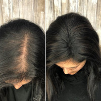 Toupee Hair For Women Brazilian Virgin 100% Human Hair Clip Ins 2.5x4 Inch Dolago 1 Piece Natural Color 130% Volume Extension
