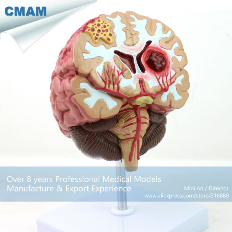 CMAM-BRAIN10 Medical Anatomical Brain Disease Model, Anatomical Model of Cerebral Artery Malformation bonin handbook of primatology lieferung 10 pattern of cerebral isocurtex