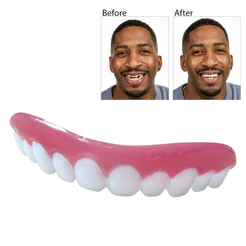 Perfect Smile Veneers Dub In Stock For Correction of Teeth For Bad Teeth Give You Perfect Smile Veneers mouth support 2